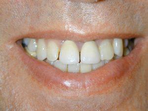Old unaesthetic crowns Evesham Place Dental Stratford-upon-Avon