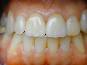New natural crowns Evesham Place Dental Stratford-upon-Avon