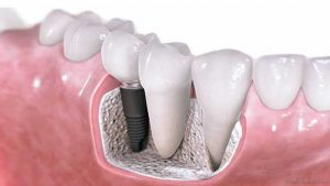 Dental Crowns Evesham Place Dental Stratford-upon-Avon