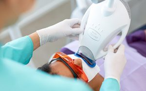 Zoom Teeth Whitening in Stratford Upon Avon